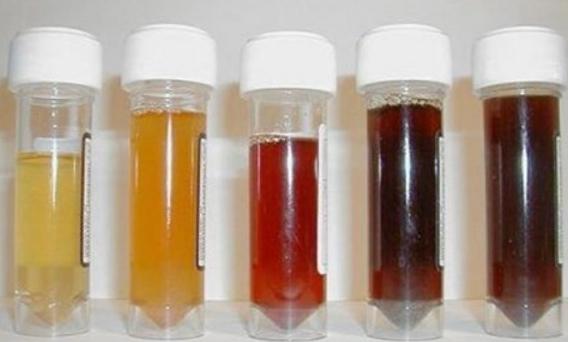 Màu và mùi của nước tiểu nói lên điều gì về sức khỏe-1