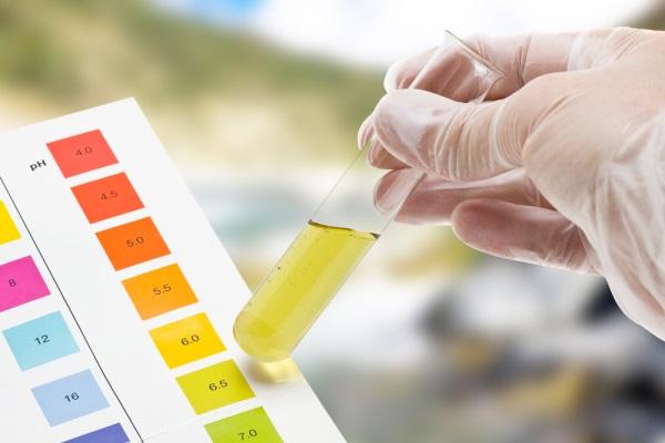 Màu và mùi của nước tiểu nói lên điều gì về sức khỏe