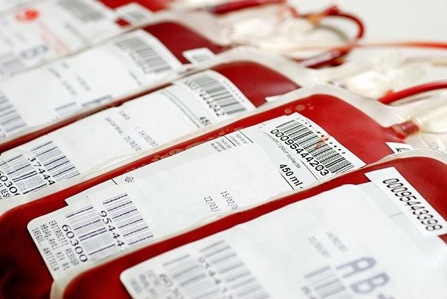 Một cơ thể người phát triển toàn bộ có 1,3 gallon máu, bao gồm plasma và tế bào. Cơ thể chúng ta không thể hoạt động nếu thiếu máu. Ngày nay, nhiều người hiến máu. Tuy nhiên, để chế biến và lưu trữ máu là một quá trình tốn kém. Bạn có thể thấy điều này ở giá của việc mua máu.