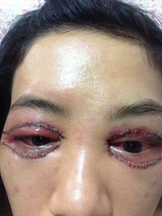 Hình ảnh được cho là thảm họa thẩm mỹ khi đi nhấn mắt của chị gái bạn (Ảnh: facebook nhân vật)