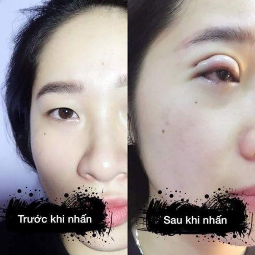 Hình ảnh trước và sau cắt mí.