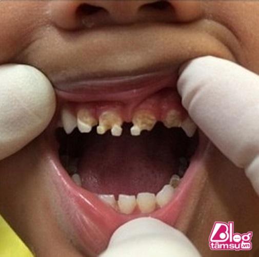 Răng trẻ đã bắt đầu xiêu quẹo, mủn nát do bi nhiễm chất flo.