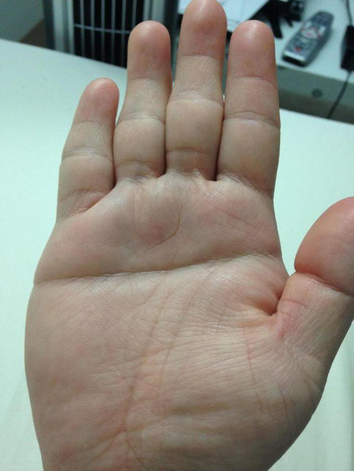 """Theo phương Tây, người có """"Bàn tay chữ Nhất"""" lại có khả năng mắc nhiều bệnh."""
