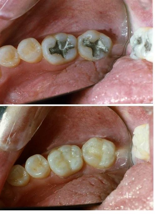 Công nghệ trám răng phần lớn phải cần tới thủy ngân.