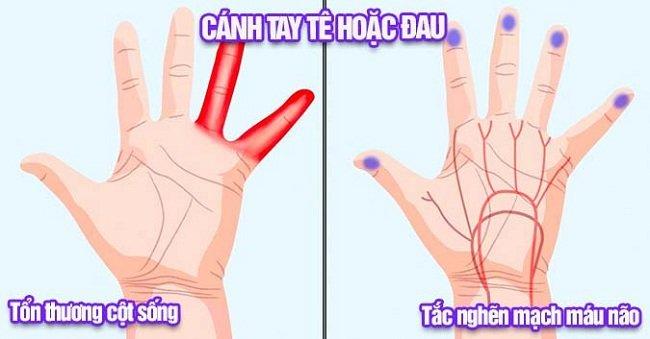Tê tay là dấu hiệu để cảnh báo chúng ta cần chú ý tới sức khỏe của mình. (Ảnh: Internet)