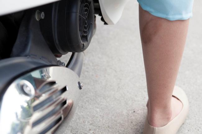Nhiều người không tự tin mặc váy ngắn khi đã có vết thẹo sậm màu và loang lổ trên bắp chân.