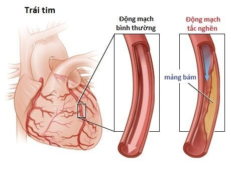 Căn bệnh còn ảnh hưởng rất lớn đến tim mạch