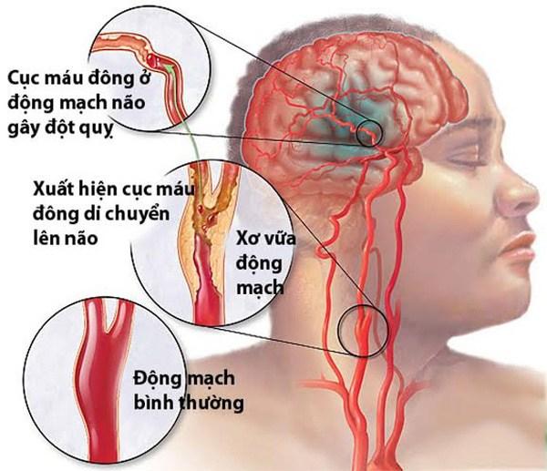 Căn bệnh máu nhiễm mỡ có thể gây tai biến mạch máu não