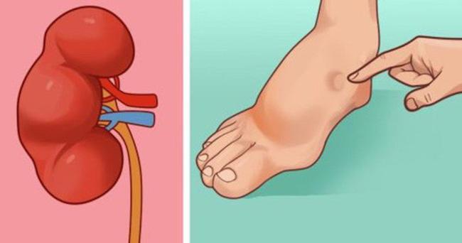 Đột quỵ do xuất huyết là do mạch máu não bị vỡ, gây ra sưng và áp lực.